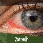Rote Augen Und Cannabis: Warum Ist Das So Und Was Kann Man Dagegen Tun?